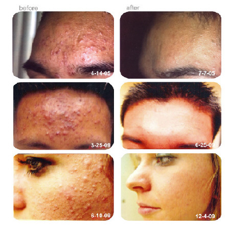 acne_picture-_your_skin1_i7m7_6uc0_w57z[1]